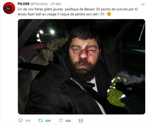 Français mutilé